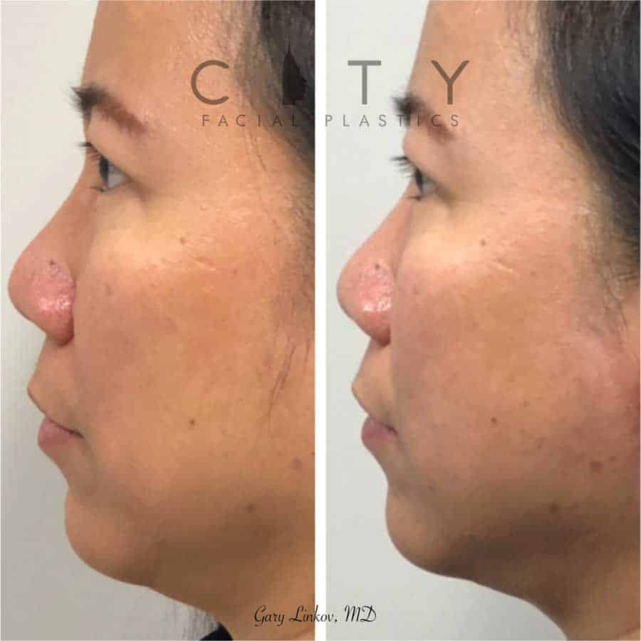 Non-surgical facelift threads Case 1 | New York Minimally Invasive Facelift