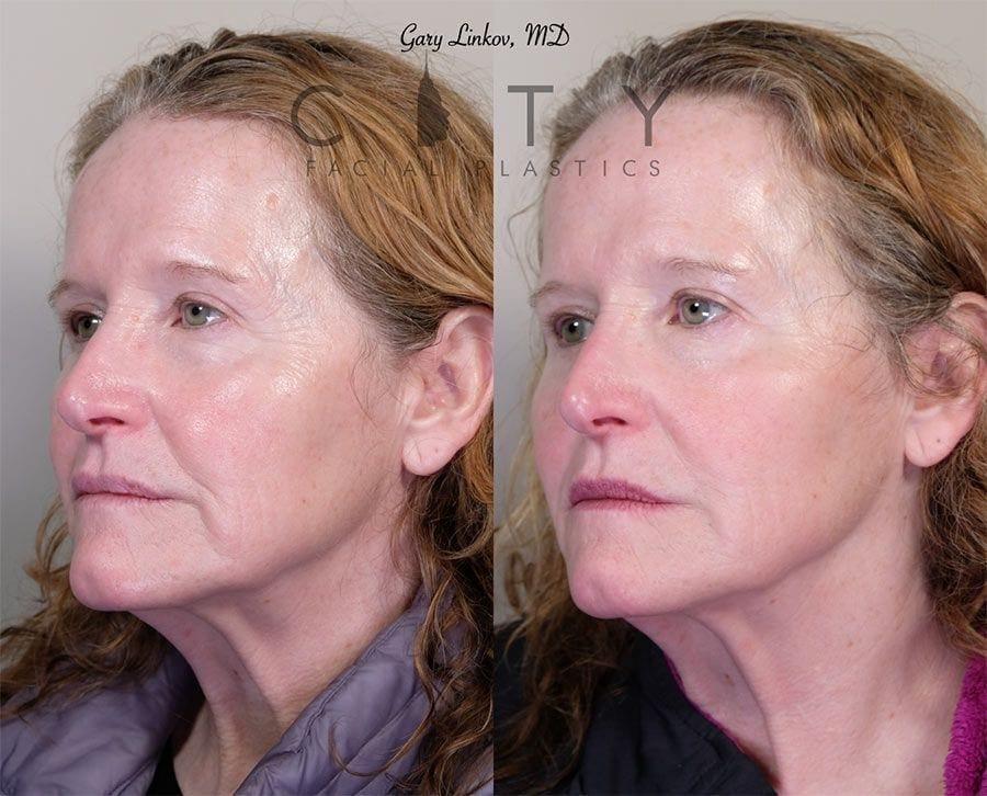 Non-surgical facelift filler/neurotoxin Case 2 | NYC Minimally Invasive Facelift