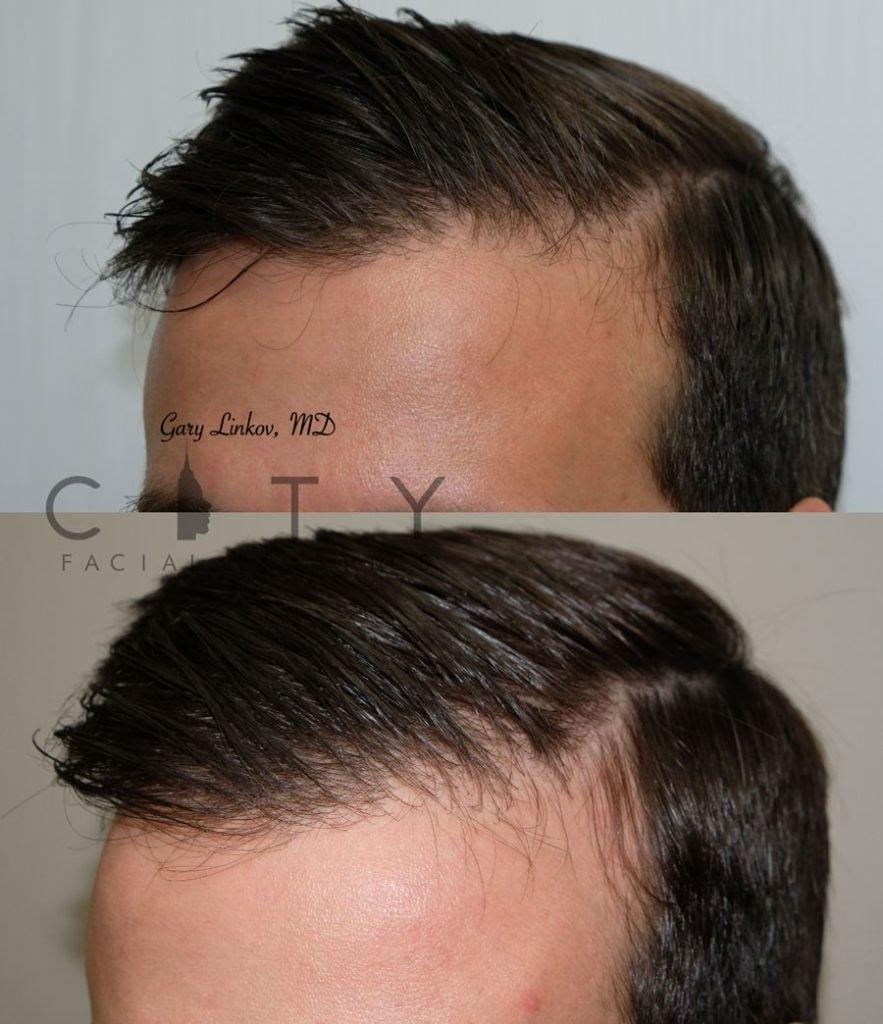 PRP for hair loss case 3 | PRP for Hair Loss, City Facial Plastics