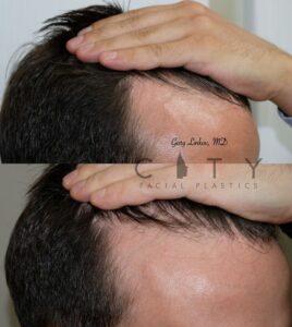 PRP for hair loss case 2
