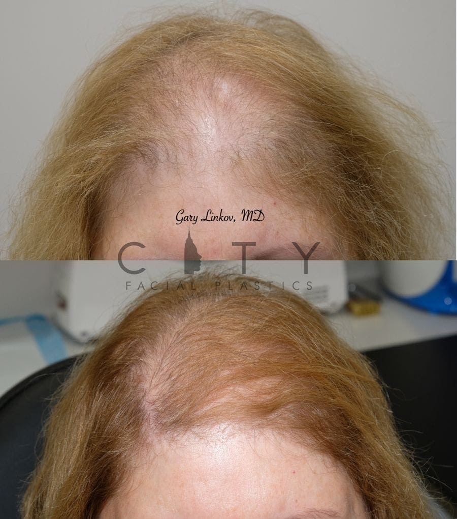 PRP for hair loss case 2 | PRP for Hair Loss, City Facial Plastics