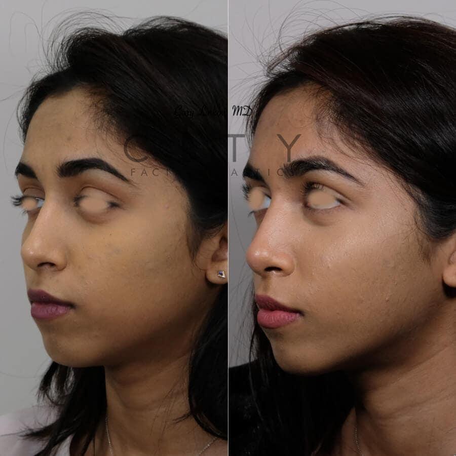 Rhinoplasty (Nose job) Case 5