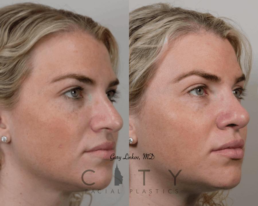 Rhinoplasty (Nose job) Case 7