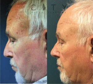 rhinoplasty before and after nyc