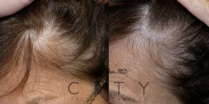 Scalp micropigmentation case 2 | NYC Scalp Micropigmentation Near Me, New York What is SMP?