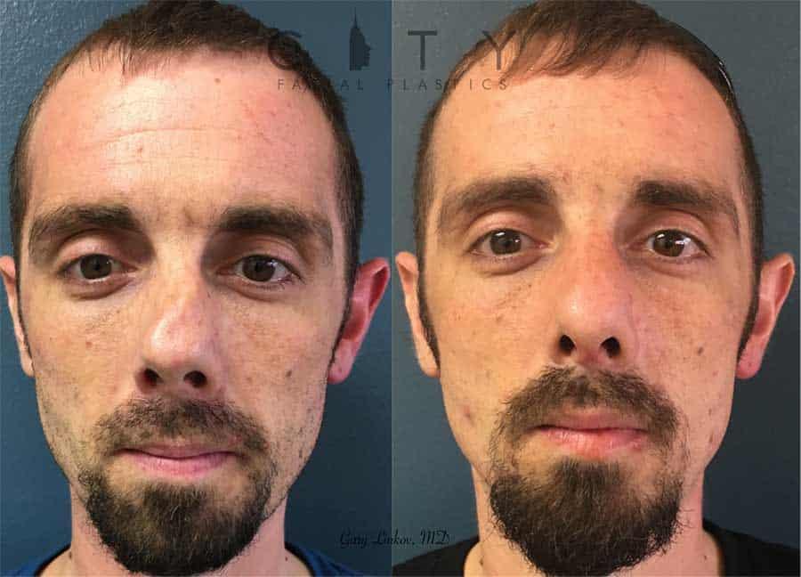 Septoplasty case 2 | New York Septoplasty Repair