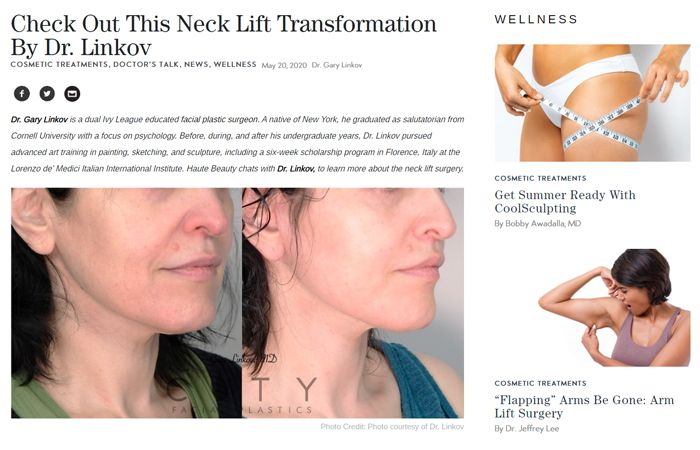 Check Out This Neck Lift Transformation By Dr. Linkov