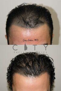 Frontal Chin Down NYC Hair Transplant