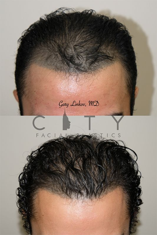 Frontal Chin Down NYC Hair Transplant
