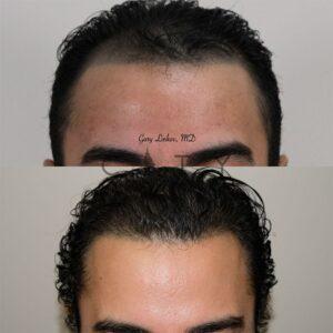 Frontal Main NYC Hair Transplant