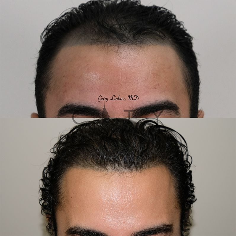 Frontal Main NYC Hair Transplant