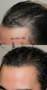 Left Hair Transplant in NYC