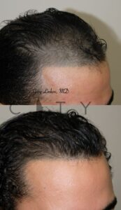 Right Hair Transplant in NYC