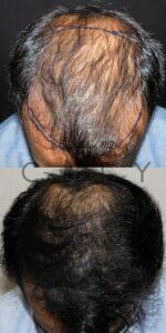 Frontal Chin Down Hair Transplant NYC