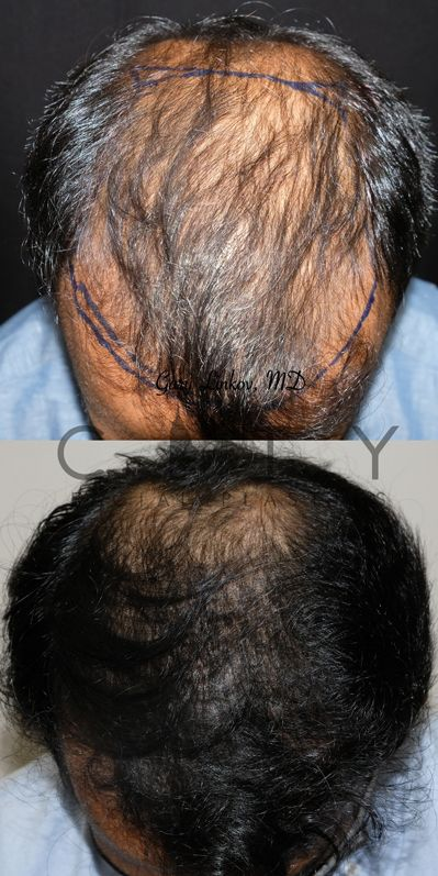 Frontal Chin Down Hair Transplant NYC