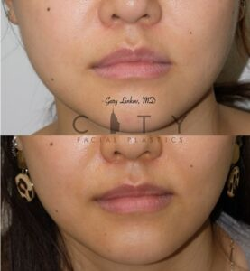 Botox Injection 10 Frontal