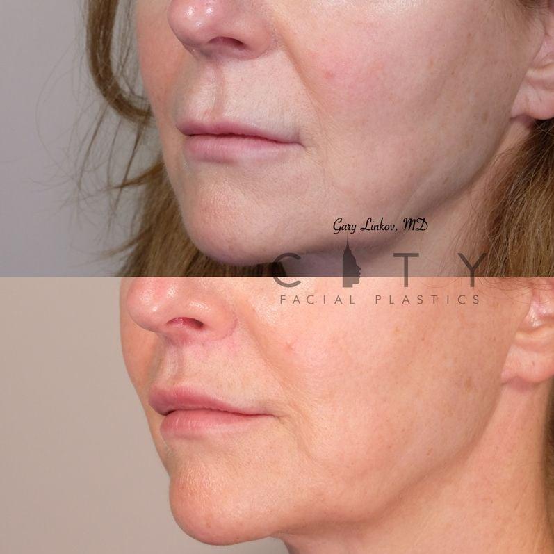 Elelyft Lip Lift Case 11 Left Oblique Mouth Closed