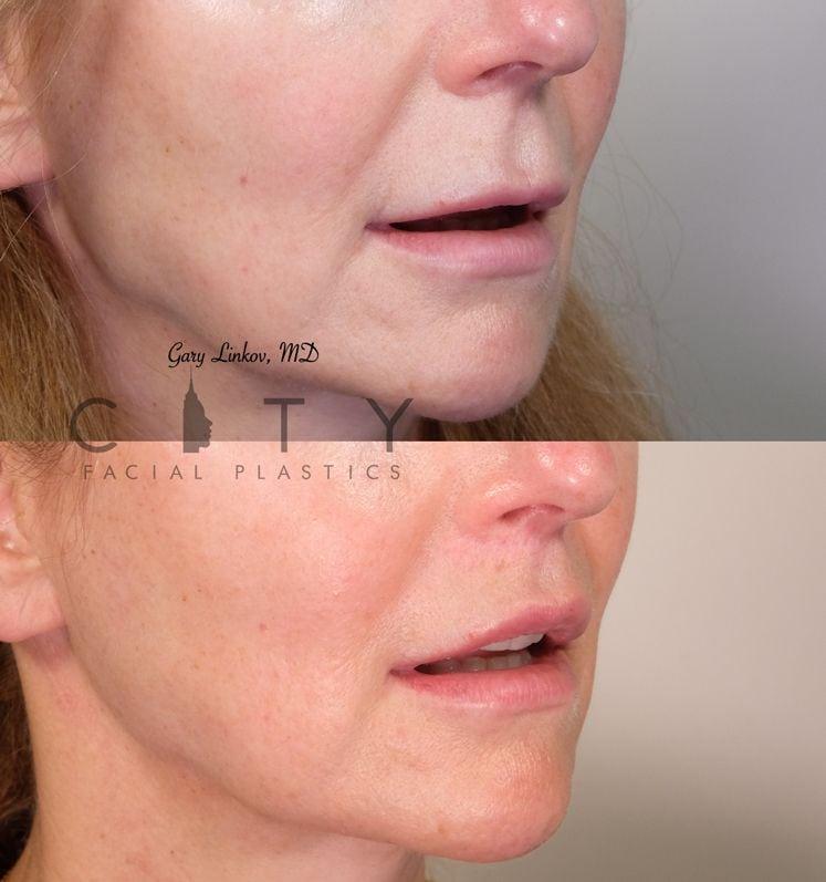 Elelyft Lip Lift Case 11 Right Oblique