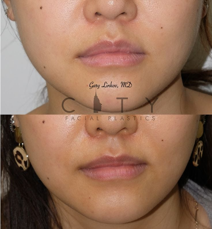 Facial Injectables Case 8 Frontal
