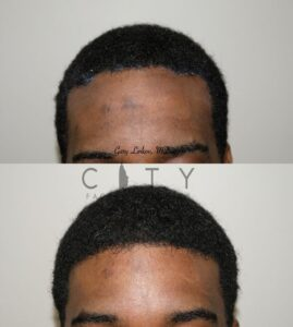 Forehead reduction case 1 frontal