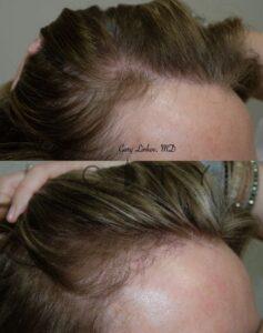 Hair Transplant 7 Right