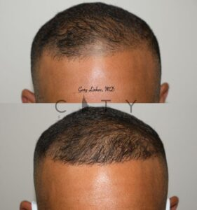 Frontal Hair Transplant in NYC
