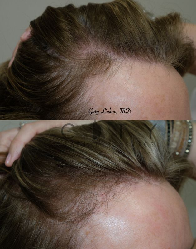 Hair Transplant Case 6 Right
