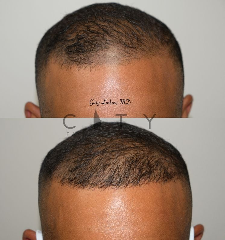 Hair transplant Case 7 Frontal