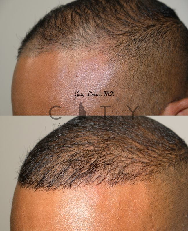 Hair transplant Case 7 Left