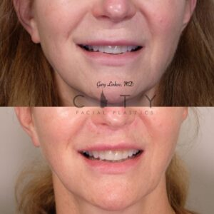 Lip Lift 32 Frontal Mouth Open Smile
