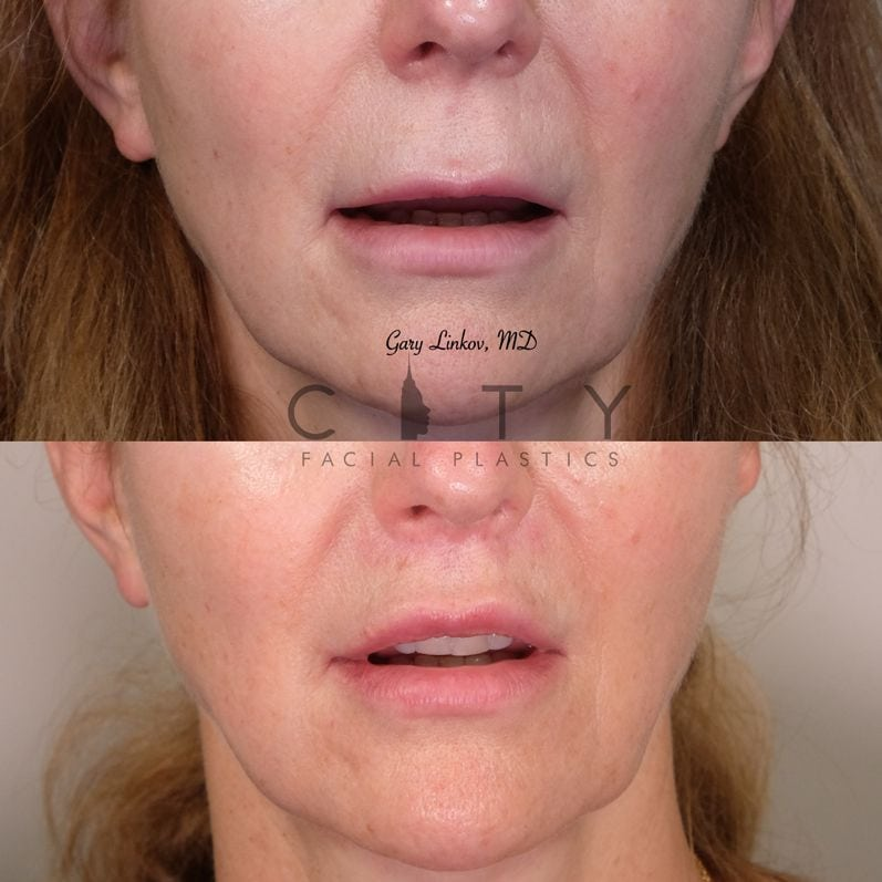 Lip Lift 32 Frontal Mouth Open