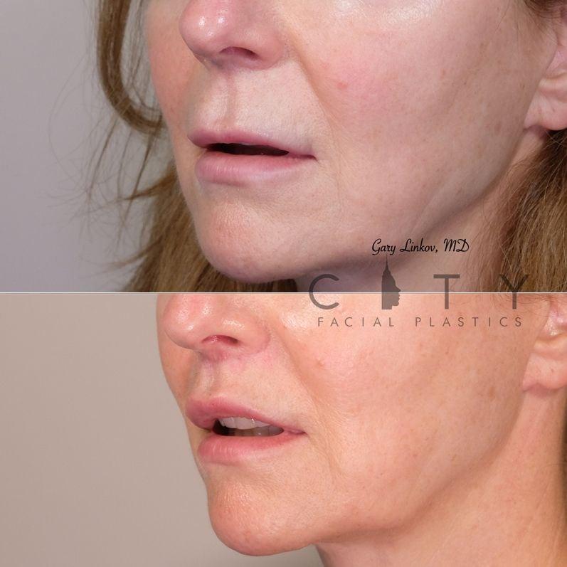 Lip Lift 32 Left Oblique Mouth Open