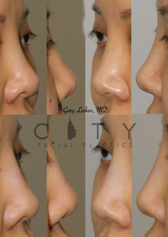A Non-surgical liquid rhinoplasty Case 3