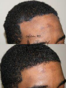 Surgical Hairline Advancement Right Oblique