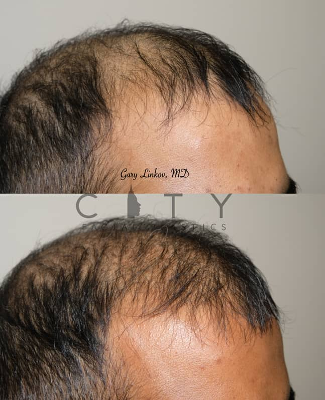 NYC Hair Transplant Right - Dr. Linkov