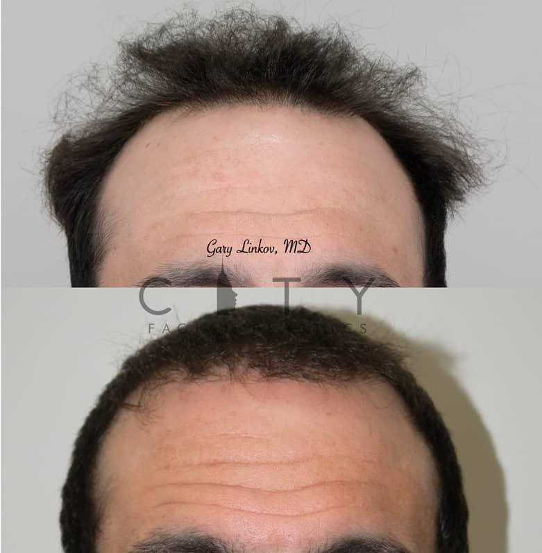 Hair Transplant New York City | Frontal - Dr. Linkov