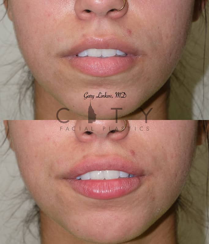 Lip Filler 7 Frontal