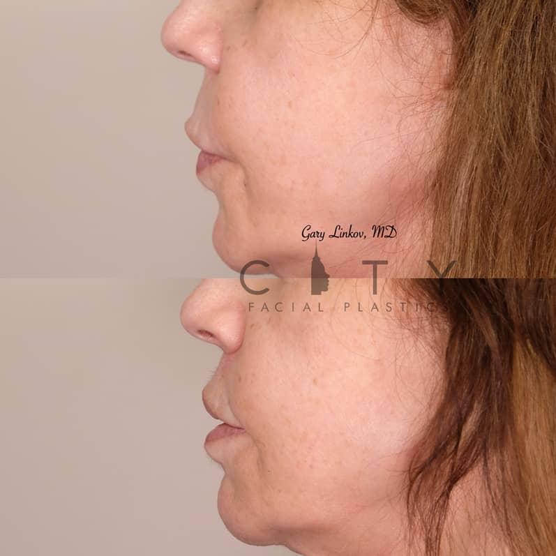 Lip Lift 33 Left Profile