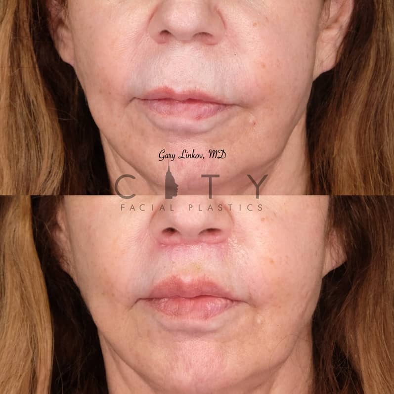 Lip Lift 33 Frontal Mouth Closed