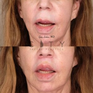 Lip Lift 33 Frontal Mouth Open