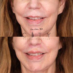 Lip Lift 33 Frontal Smile
