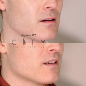 Lip Lift 34 Right Oblique Mouth Open