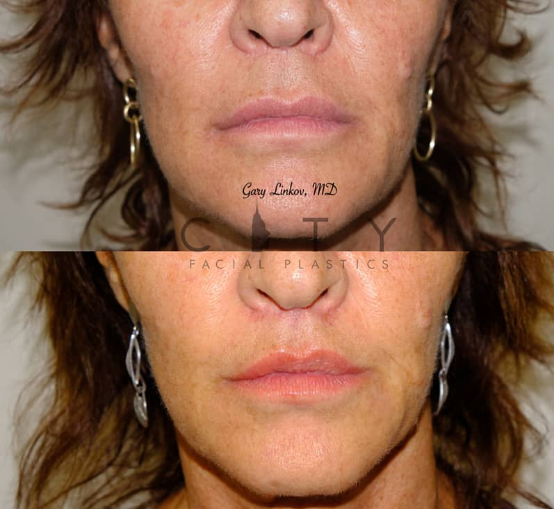 Lip Lift 35 Frontal Mouth Closed