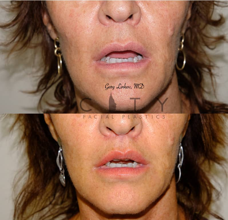 Lip Lift 35 Frontal Mouth Open