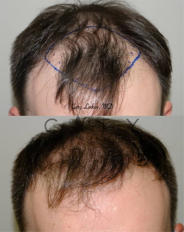 Hair Transplant in NYC | Frontal