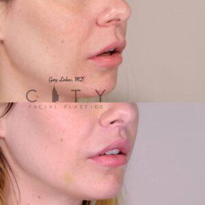 Lip Lift NYC | Right Oblique