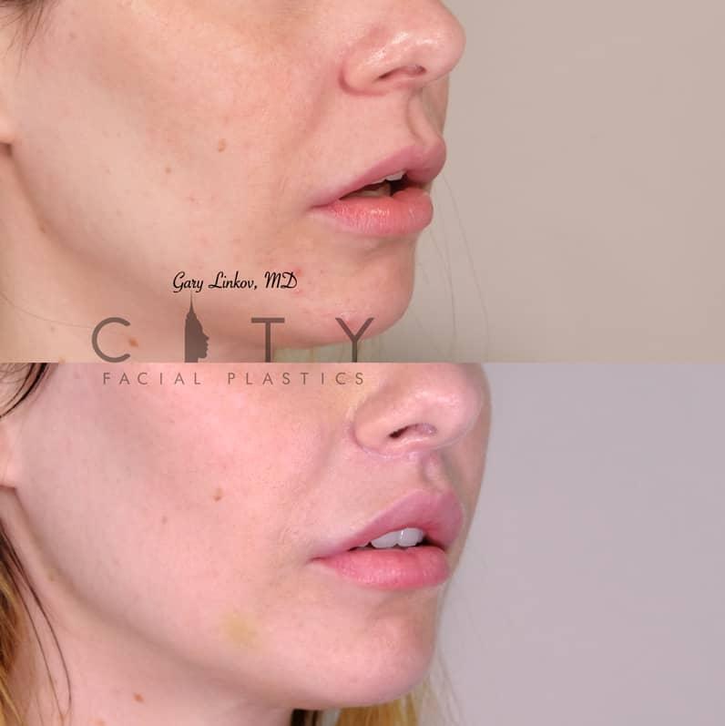 Lip Lift 36 Right Oblique