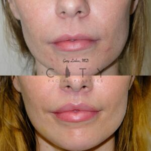 Lip Lift 36 Frontal Mouth Closed
