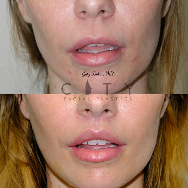 Lip Lift 36 Frontal Mouth Open