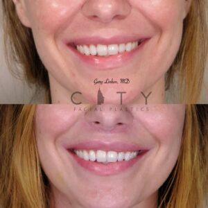 Lip Lift 36 Frontal Smile
